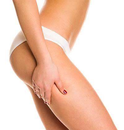 Cellulite des cuisses dr Christelle Santini